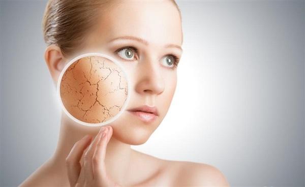 Стягнутість шкіри обличчя  причини f2c7e5284839e